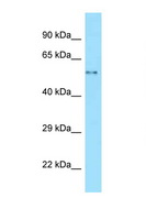 WASL / N-WASP Antibody - WASL antibody Western blot of Fetal Lung lysate. Antibody concentration 1 ug/ml.  This image was taken for the unconjugated form of this product. Other forms have not been tested.