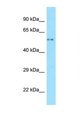WASL antibody Western blot of Fetal Lung lysate. Antibody concentration 1 ug/ml.  This image was taken for the unconjugated form of this product. Other forms have not been tested.