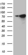 WASL / N-WASP Antibody - HEK293T cells were transfected with the pCMV6-ENTRY control. (Left lane) or pCMV6-ENTRY WASL. (Right lane) cDNA for 48 hrs and lysed