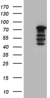 WASL / N-WASP Antibody - HEK293T cells were transfected with the pCMV6-ENTRY control. (Left lane) or pCMV6-ENTRY WASL. (Right lane) cDNA for 48 hrs and lysed. Equivalent amounts of cell lysates. (5 ug per lane) were separated by SDS-PAGE and immunoblotted with anti-WASL. (1:2000)