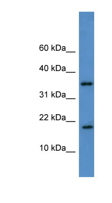 WBP5 antibody LS-C135074 Western blot of THP-1 cell lysate.  This image was taken for the unconjugated form of this product. Other forms have not been tested.