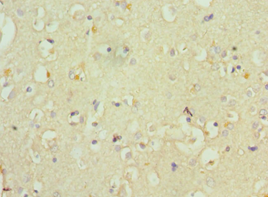 Immunohistochemistry of paraffin-embedded human brain using antibody 1:100 dilution.