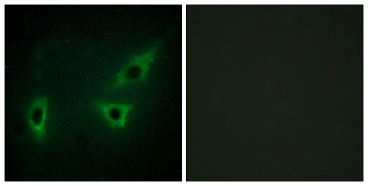 Immunofluorescence analysis of HeLa cells, using ATP7B Antibody. The picture on the right is blocked with the synthesized peptide.