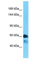 WC1 / ATP7B antibody Western Blot of Lung Tumor. Antibody dilution: 1 ug/ml.  This image was taken for the unconjugated form of this product. Other forms have not been tested.