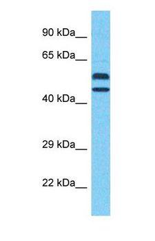 WDFY2 Antibody - Western blot of WDFY2 Antibody with human MCF7 Whole Cell lysate.  This image was taken for the unconjugated form of this product. Other forms have not been tested.