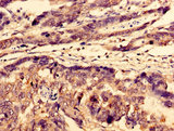 Immunohistochemistry image of paraffin-embedded human gastric cancer at a dilution of 1:100