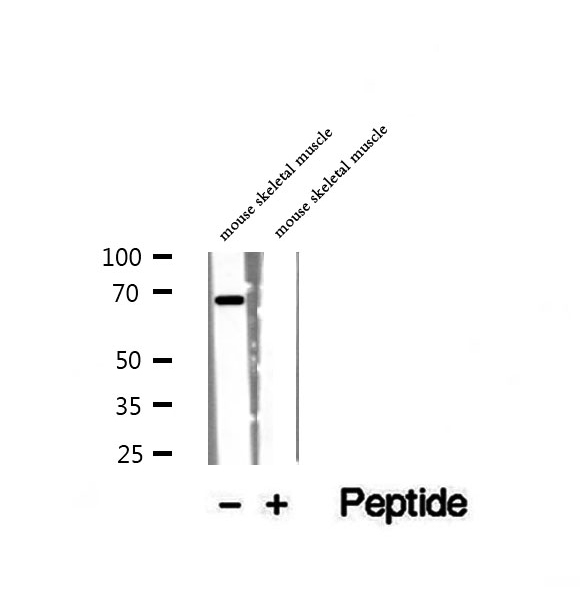 WDR1 Antibody - Western blot analysis of extracts of mouse skeletal muscle tissue using WDR1 antibody.