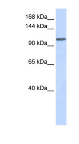 WDR63 Antibody - WDR63 antibody Western blot of Placenta lysate. This image was taken for the unconjugated form of this product. Other forms have not been tested.