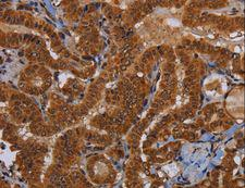 WDR83 Antibody - Immunohistochemistry of paraffin-embedded Human colon cancer using WDR83 Polyclonal Antibody at dilution of 1:60.