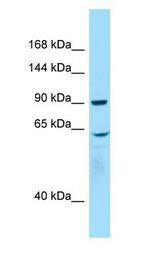WHAMM Antibody - WHAMM antibody Western Blot of Placenta.  This image was taken for the unconjugated form of this product. Other forms have not been tested.