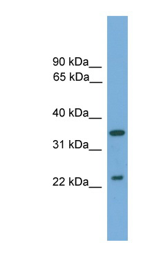 WIF1 antibody LS-C116473 Western blot of Fetal Muscle lysate.  This image was taken for the unconjugated form of this product. Other forms have not been tested.