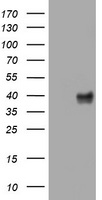 HEK293T cells were transfected with the pCMV6-ENTRY control (Left lane) or pCMV6-ENTRY WNT3 (Right lane) cDNA for 48 hrs and lysed. Equivalent amounts of cell lysates (5 ug per lane) were separated by SDS-PAGE and immunoblotted with anti-WNT3.