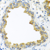 WNT5B Antibody - Immunohistochemistry of paraffin-embedded mouse lung tissue.