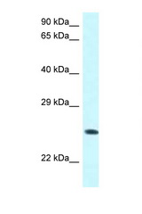 WWOX antibody Western blot of COL0205 Cell lysate. Antibody concentration 1 ug/ml.  This image was taken for the unconjugated form of this product. Other forms have not been tested.