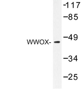 WWOX Antibody - Western blot of WWOX (A7) pAb in extracts from HepG2 cells.