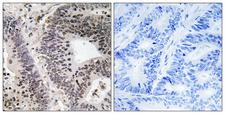 WWOX Antibody - Immunohistochemistry analysis of paraffin-embedded human colon carcinoma, using WWOX (Phospho-Tyr33) Antibody. The picture on the right is blocked with the phospho peptide.
