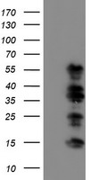 HEK293T cells were transfected with the pCMV6-ENTRY control (Left lane) or pCMV6-ENTRY WWTR1 (Right lane) cDNA for 48 hrs and lysed. Equivalent amounts of cell lysates (5 ug per lane) were separated by SDS-PAGE and immunoblotted with anti-WWTR1.