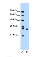 XBP1 Antibody - Lane A: Marker. Lane B: Jurkat cell lysate. Antibody concentration: 1.0 ug/ml. Gel concentration: 12%.  This image was taken for the unconjugated form of this product. Other forms have not been tested.