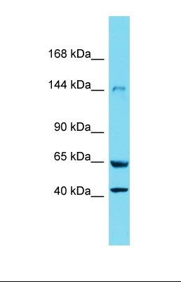 Western blot of Rat Lung. Xdh antibody dilution 1.0 ug/ml.  This image was taken for the unconjugated form of this product. Other forms have not been tested.