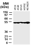 Western blot of XIAP in various tumor cell lines recombinant Polyclonal Antibody to XIAP at 1:2000.