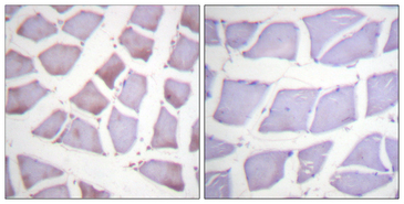 Immunohistochemistry analysis of paraffin-embedded human skeletal muscle tissue, using XIAP Antibody. The picture on the right is blocked with the synthesized peptide.