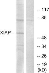 Western blot analysis of lysates from 293 cells, using XIAP Antibody. The lane on the right is blocked with the synthesized peptide.