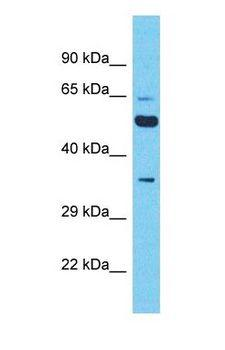 XKR5 Antibody - Western blot of XKR5 Antibody with human A549 Whole Cell lysate.  This image was taken for the unconjugated form of this product. Other forms have not been tested.