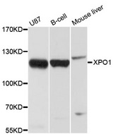 Western blot analysis of extracts of various cell lines, using XPO1 antibody at 1:1000 dilution. The secondary antibody used was an HRP Goat Anti-Rabbit IgG (H+L) at 1:10000 dilution. Lysates were loaded 25ug per lane and 3% nonfat dry milk in TBST was used for blocking. An ECL Kit was used for detection and the exposure time was 1s.