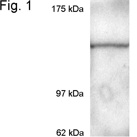 WB using Exportin 1 / CRM1 Antibody
