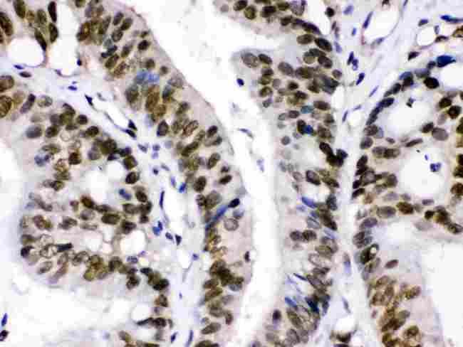CRM1 was detected in paraffin-embedded sections of human intestinal cancer tissues using rabbit anti- CRM1 Antigen Affinity purified polyclonal antibody