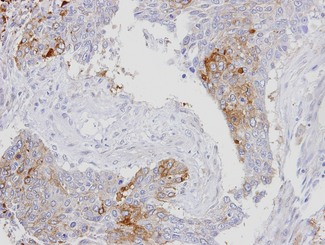 XPO7 / RANBP16 Antibody - IHC of paraffin-embedded lung SCC using RanBP16 antibody at 1:100 dilution.
