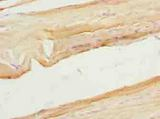 Immunohistochemistry of paraffin-embedded human skeletal muscle tissue using antibody at dilution of 1:100.