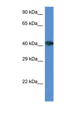 XRCC3 antibody LS-C145307 Western blot of ACHN Cell lysate. Antibody concentration 1 ug/ml.  This image was taken for the unconjugated form of this product. Other forms have not been tested.