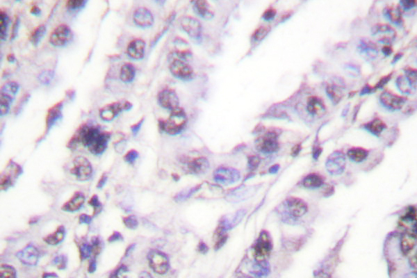 IHC of Ku80 (D708) pAb in paraffin-embedded human lung carcinoma tissue.