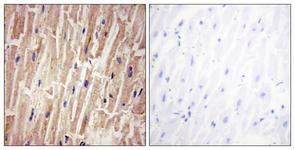 IHC of paraffin-embedded human heart , using YAP (Phospho-Ser127) Antibody. The sample on the right was incubated with synthetic peptide.