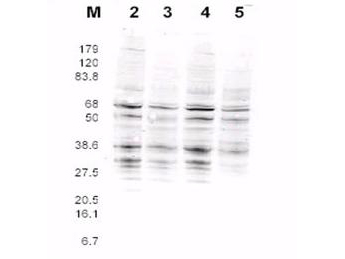 Yeast Rfa2 Antibody - Anti-RFA2 Antibody - Western Blot. This product was assayed by western blotting against RFA2 containing cell lysates. Blot incubated for 1 hr at RT with affinity purified Rabbit anti-RFA2 pan reactive Lot 13229 at 1.0 ug/ml followed by 1:5000 dilution of IRDye800 Sheep anti-Rabbit IgG for 1 hr at RT.