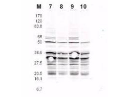 Yeast Rfa2 Antibody - Anti-RFA2 pS122 Antibody - Western Blot. This product was assayed by western blotting against RFA2 containing cell lysates. Affinity purified rabbit anti-RFA2 pS122 specific Lot 13230 at 1.0 ug/ml for 1 hr at RT followed by IRDye 800 Sh anti-Rabbit IgG 1:5000 1 hr RT.