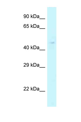 CHI3L2 antibody LS-C145940 Western blot of Fetal Liver lysate. Antibody concentration 1 ug/ml.  This image was taken for the unconjugated form of this product. Other forms have not been tested.