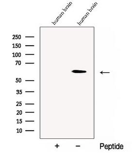 Yo / CDR2 Antibody - Western blot analysis of extracts of human brain tissue using CDR2 antibody. The lane on the left was treated with blocking peptide.