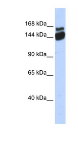 ZBED9 / SCAND3 Antibody - SCAND3 antibody Western blot of Fetal Brain lysate. This image was taken for the unconjugated form of this product. Other forms have not been tested.