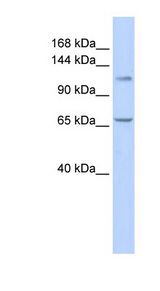ZBTB10 antibody Western blot of 721_B cell lysate. This image was taken for the unconjugated form of this product. Other forms have not been tested.