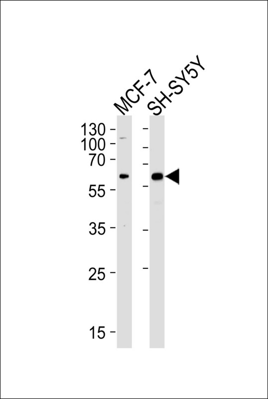 ZBTB22 Antibody - Western blot of lysates from MCF-7, SH-SY5Y cell line (from left to right), using ZBTB22 Antibody. Antibody was diluted at 1:1000 at each lane. A goat anti-rabbit IgG H&L (HRP) at 1:5000 dilution was used as the secondary antibody. Lysates at 35ug per lane.