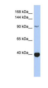 ZBTB4 antibody Western blot of Fetal Spleen lysate. This image was taken for the unconjugated form of this product. Other forms have not been tested.