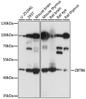ZBTB6 Antibody - Western blot analysis of extracts of various cell lines, using ZBTB6 antibody at 1:1000 dilution. The secondary antibody used was an HRP Goat Anti-Rabbit IgG (H+L) at 1:10000 dilution. Lysates were loaded 25ug per lane and 3% nonfat dry milk in TBST was used for blocking. An ECL Kit was used for detection and the exposure time was 5s.