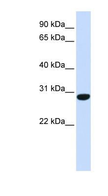 C6orf94 antibody LS-C102373 Western blot of Fetal Muscle lysate.  This image was taken for the unconjugated form of this product. Other forms have not been tested.