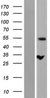 ZC3HC1 / NIPA Protein - Western validation with an anti-DDK antibody * L: Control HEK293 lysate R: Over-expression lysate