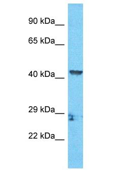 ZCCHC18 Antibody - ZCCHC18 antibody Western Blot of HCT15. Antibody dilution: 1 ug/ml.  This image was taken for the unconjugated form of this product. Other forms have not been tested.