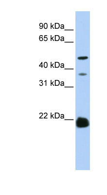 ZDHHC14 antibody LS-C101982 Western blot of HeLa lysate.  This image was taken for the unconjugated form of this product. Other forms have not been tested.