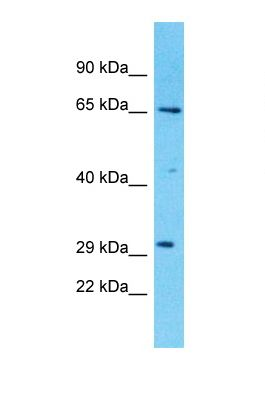 Western blot of Human THP-1. ZDHHC20 antibody dilution 1.0 ug/ml.  This image was taken for the unconjugated form of this product. Other forms have not been tested.