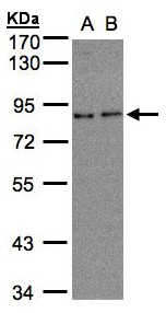 ZER1 Antibody - Sample (30 ug whole cell lysate). A: A431, B: H1299. 7.5% SDS PAGE. ZER1 antibody diluted at 1:500